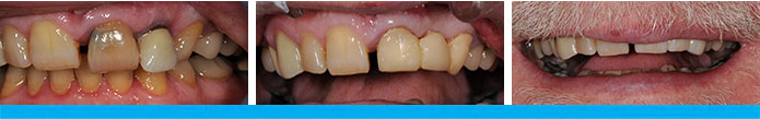 Dental Bridge Before & After
