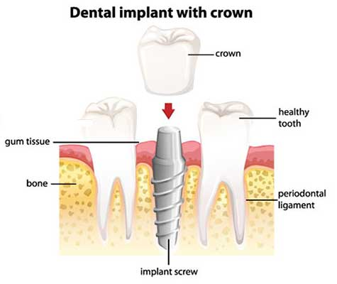 Crowns attached to Dental Implants