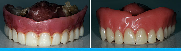 Dentures Before & After