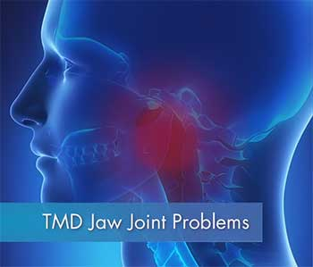 TMJ Jaw Joint Problems