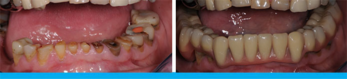 Lower Full Denture Before & After
