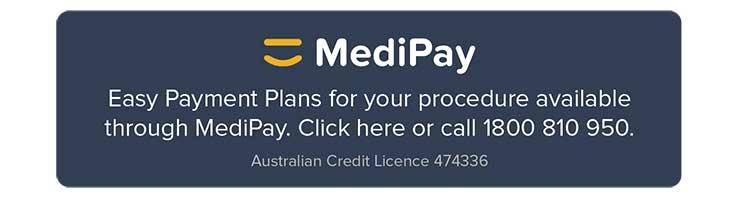 MediPay Payment Plan