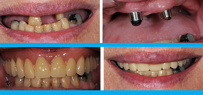 Telescopic Denture Before & After